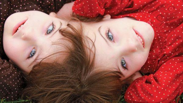 奇形腫 双子